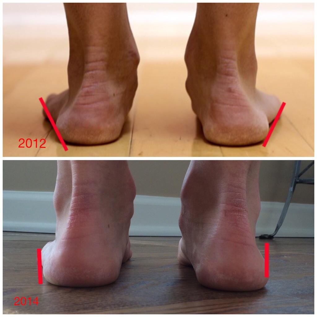 arco lateral antes de usar calzado minimalista