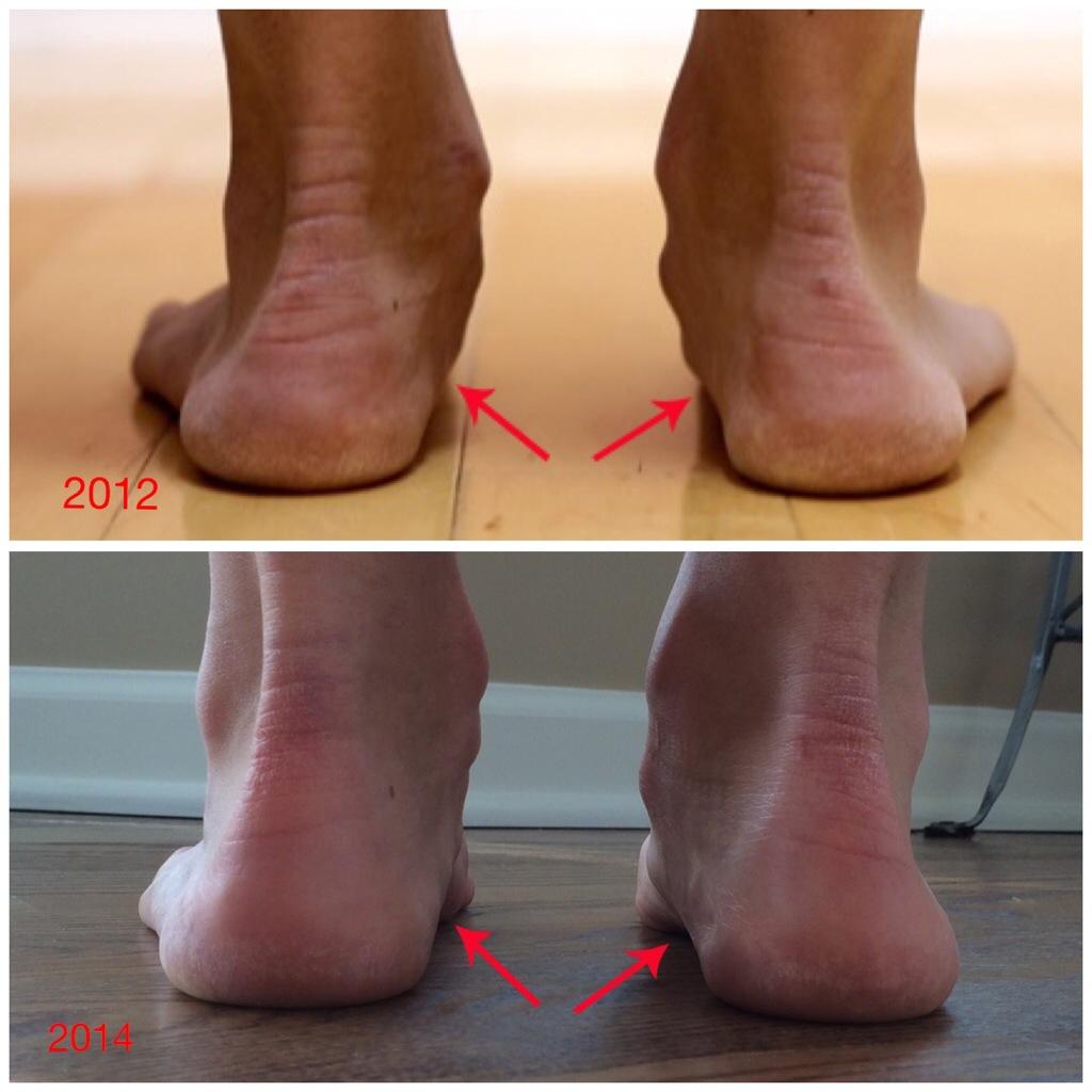 arco medial antes de usar calzado minimalista