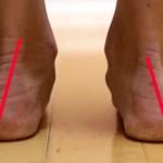 Reflexiones minimalistas sobre la pronación